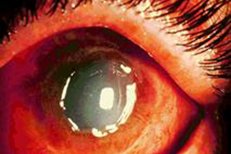 מסיר שומנים גרם לכוויה  כימית קשה בעין